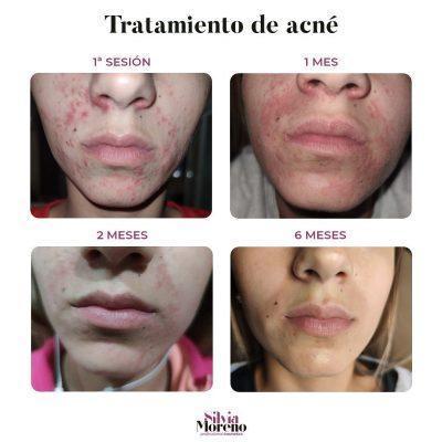 tratamiento de acné con productos OVACO